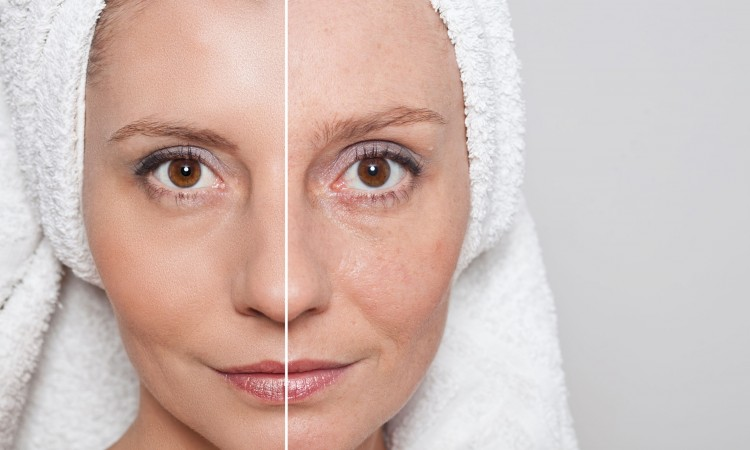 47693017 - beauty concept - skin care, anti-aging procedures, rejuvenation, lifting, tightening of facial skin